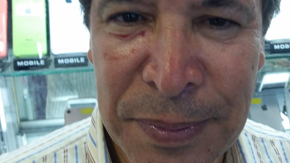 المحامي عبد العزيز النويضي، بعد أن لكمه شرطي في وجهه أثناء فضّ اعتصام صغير في الرباط.